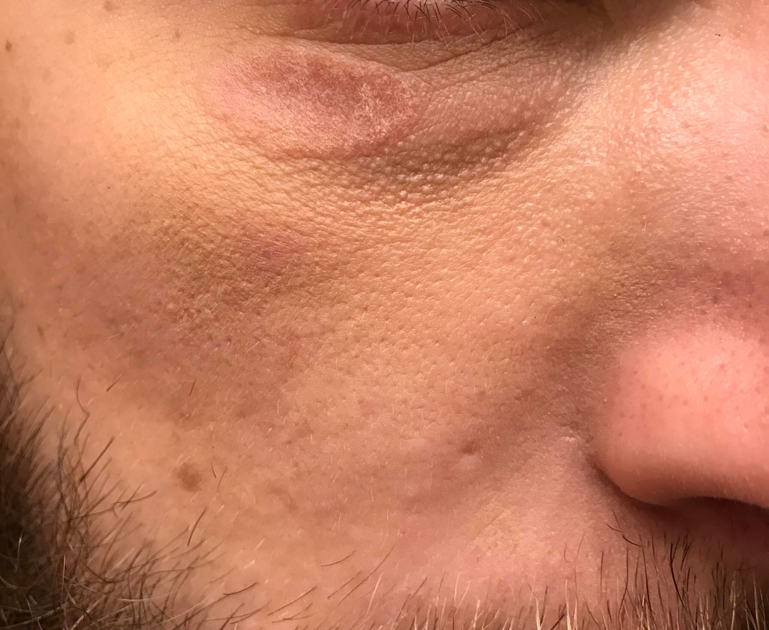 [Skin concern] raised mark after hit under the eye a month ago. I used cicaplast and moisturizer. Is this mark permanent now? Anyway to fix?
