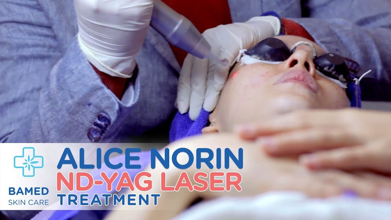 Alice Norin meet ND-YAG Laser | Bamed Skin Care