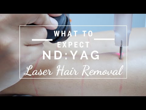 Nd:Yag Laser Hair Removal experiance Q & A brown dark skin what to expect, how does it work? Truth
