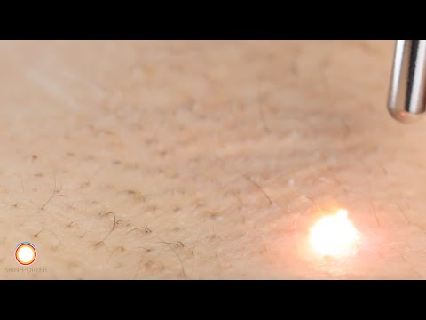 Close up Laser Hair Removal with Nd:YAG laser systems HD 雷射永久除毛 高清