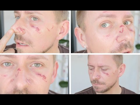 YAG LASER DID THIS TO ME!