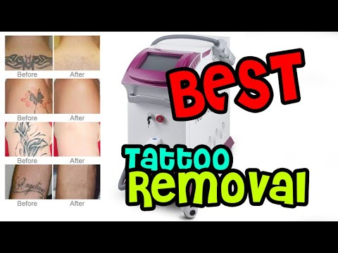 Best Tattoo Removal Picosecond Nd Yag Laser Pink