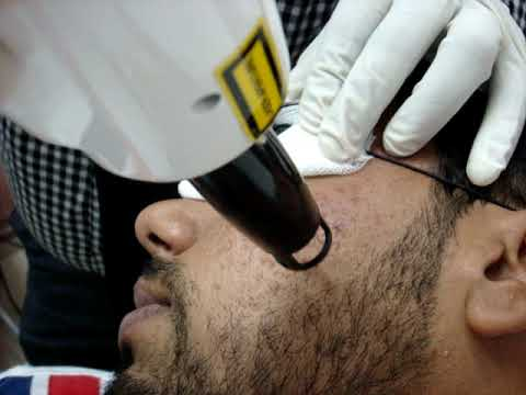 Removing acne scar(post) using Nd-Yag laser by a Dermatologist in Kochi