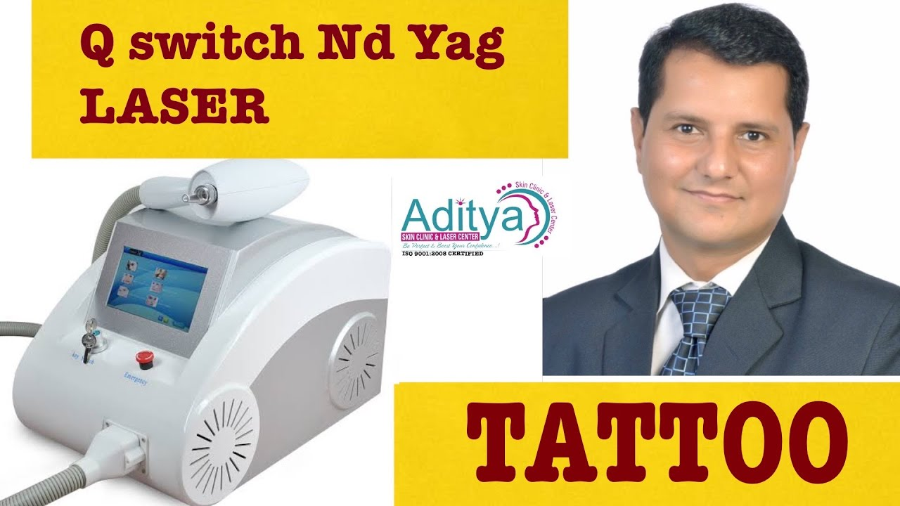 TATTOO REMOVAL BY Nd Yag LASER.