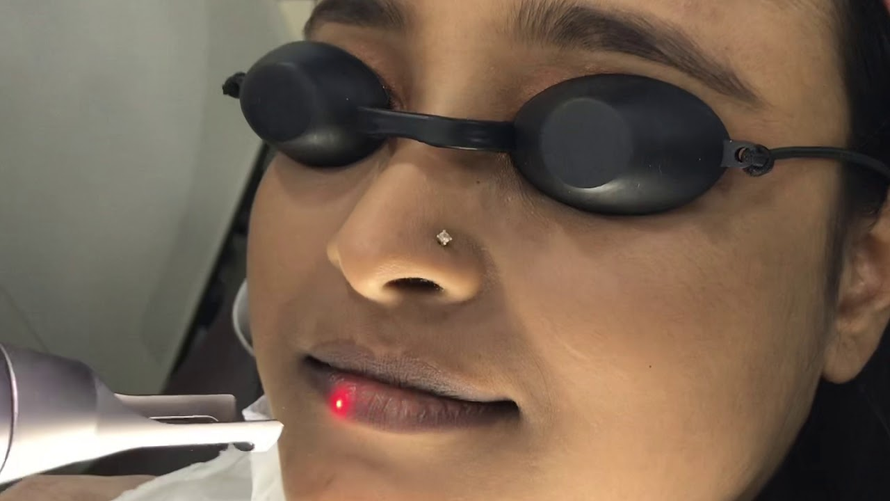 Pinkish Lips by Nd: YAG Laser Treatment