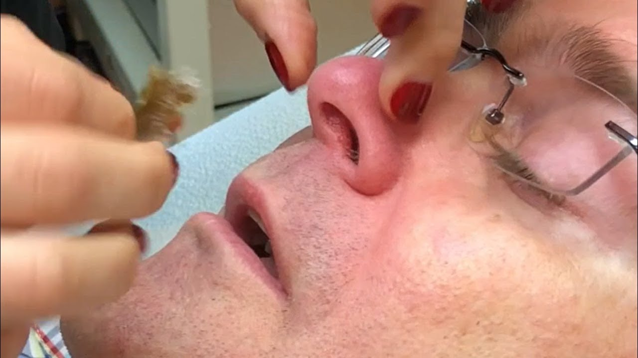 Dr. John Gilmore's Nose Hair Removal?  Oh Boy!  (Part Two)
