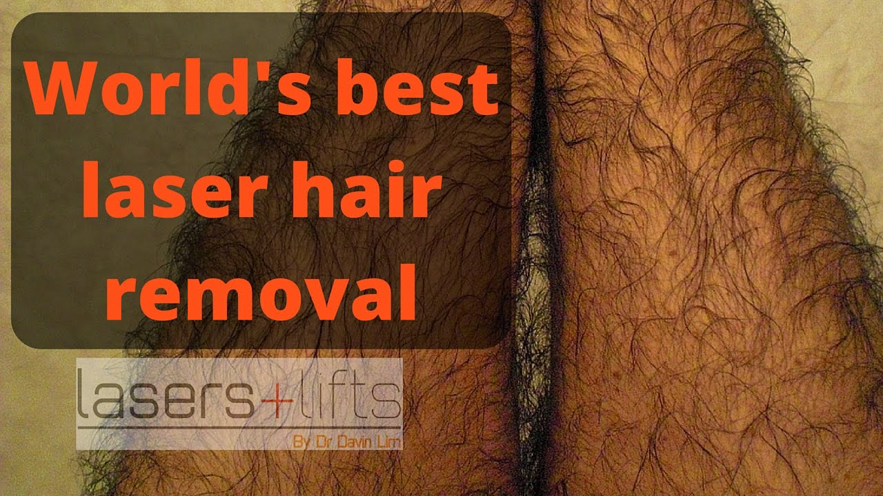 World's best hair removal laser