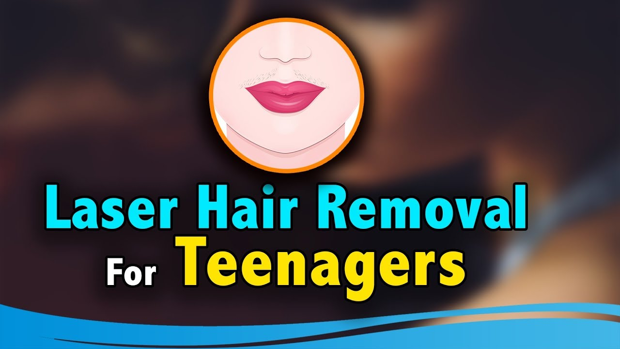 Laser Hair Removal Procedure on Upper Lip | Teenagers | Cutis Skin Solution