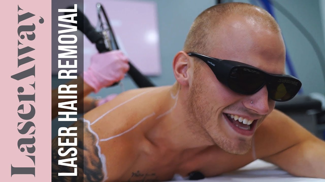 Men's Laser Hair Removal On Shoulders And Back With Brandon Skeie | LaserAway