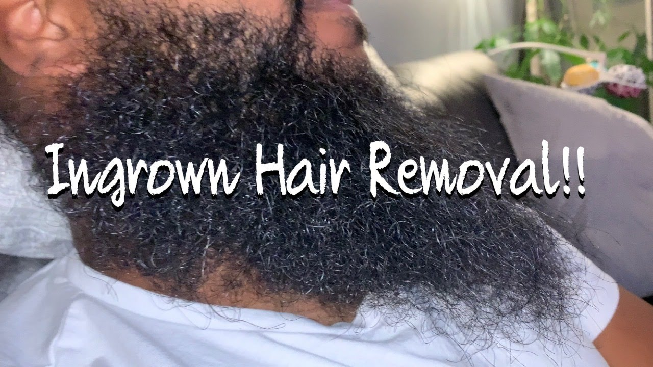 The Most Satisfying Ingrown Hair Removal From Beard!!