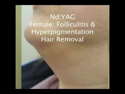 Nd:YAG Laser Hair Removal Before and After