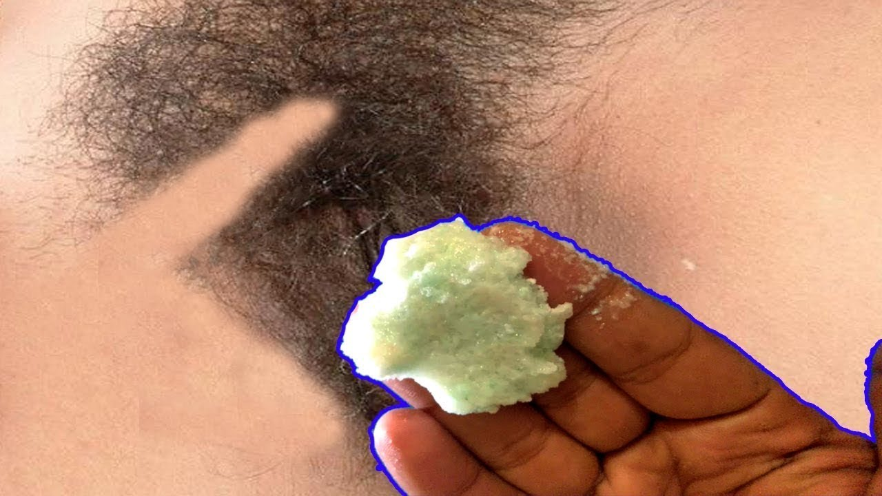 Baking Soda Will Do Magical Things To Your Skin and hair | Remove Unwanted Hair