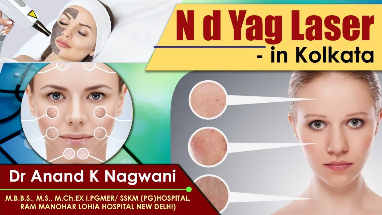 Nd yag laser II Skin Laser clinic in Kolkata II Skin Laser Facial II Skin and laser clinic