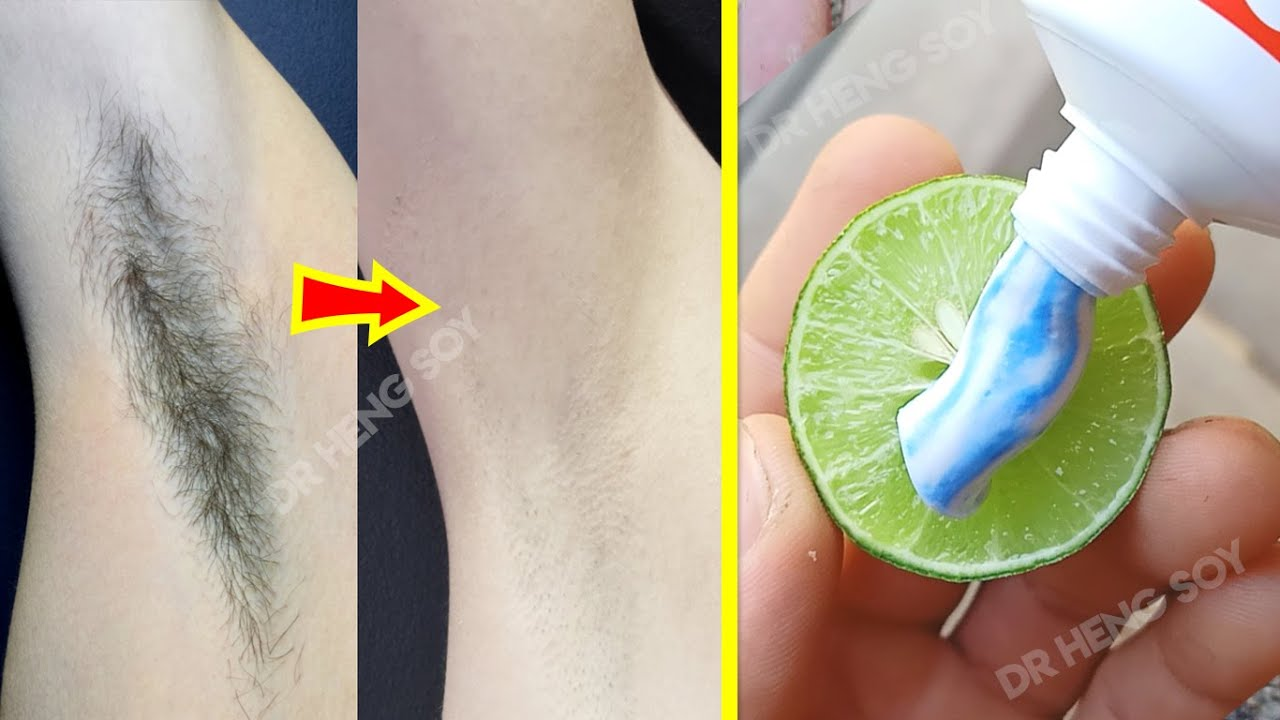 In 3 Week Remove Unwanted Armpit Hair Permanently | 100% Works At Home