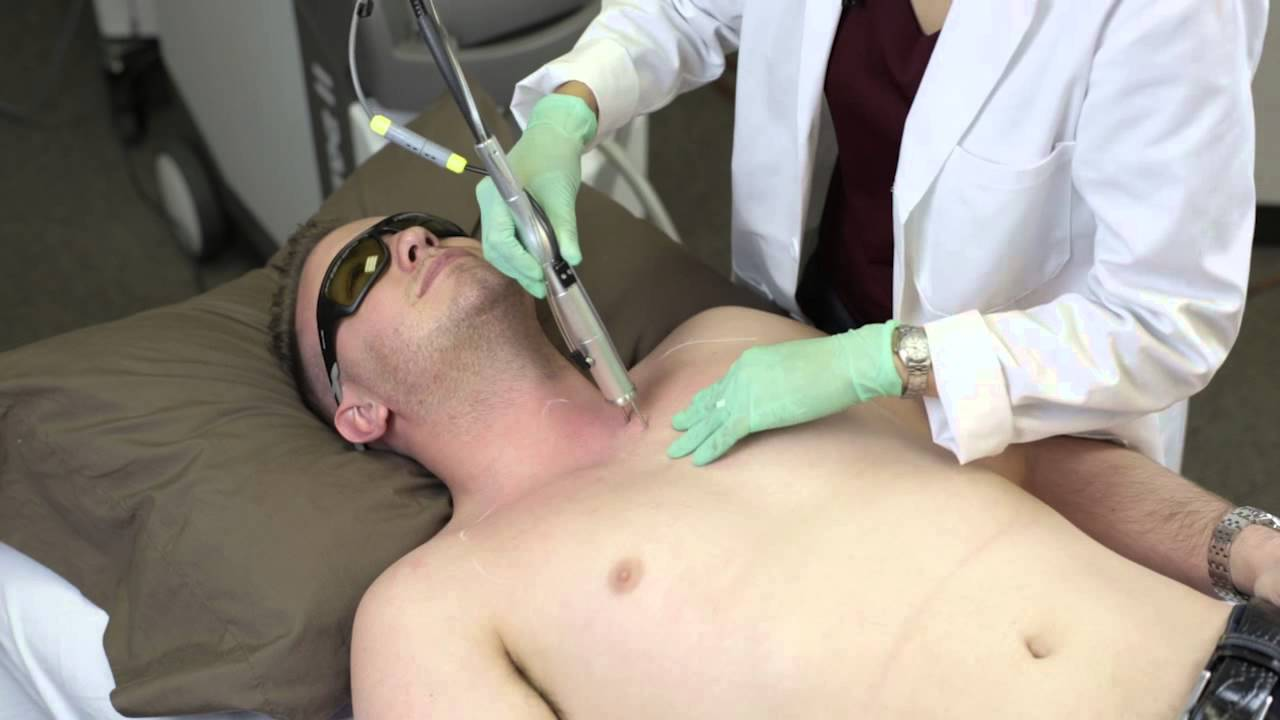 Laser Hair Removal with Alexandrite 755nm