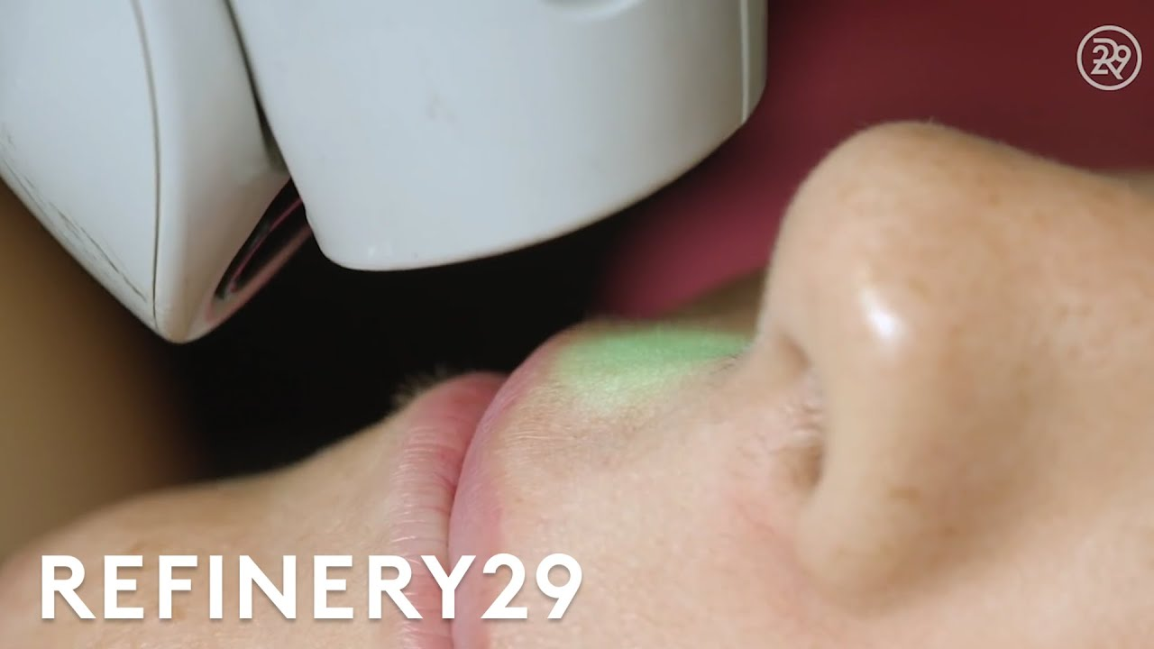 I Got Laser Hair Removal For The First Time | Macro Beauty | Refinery29