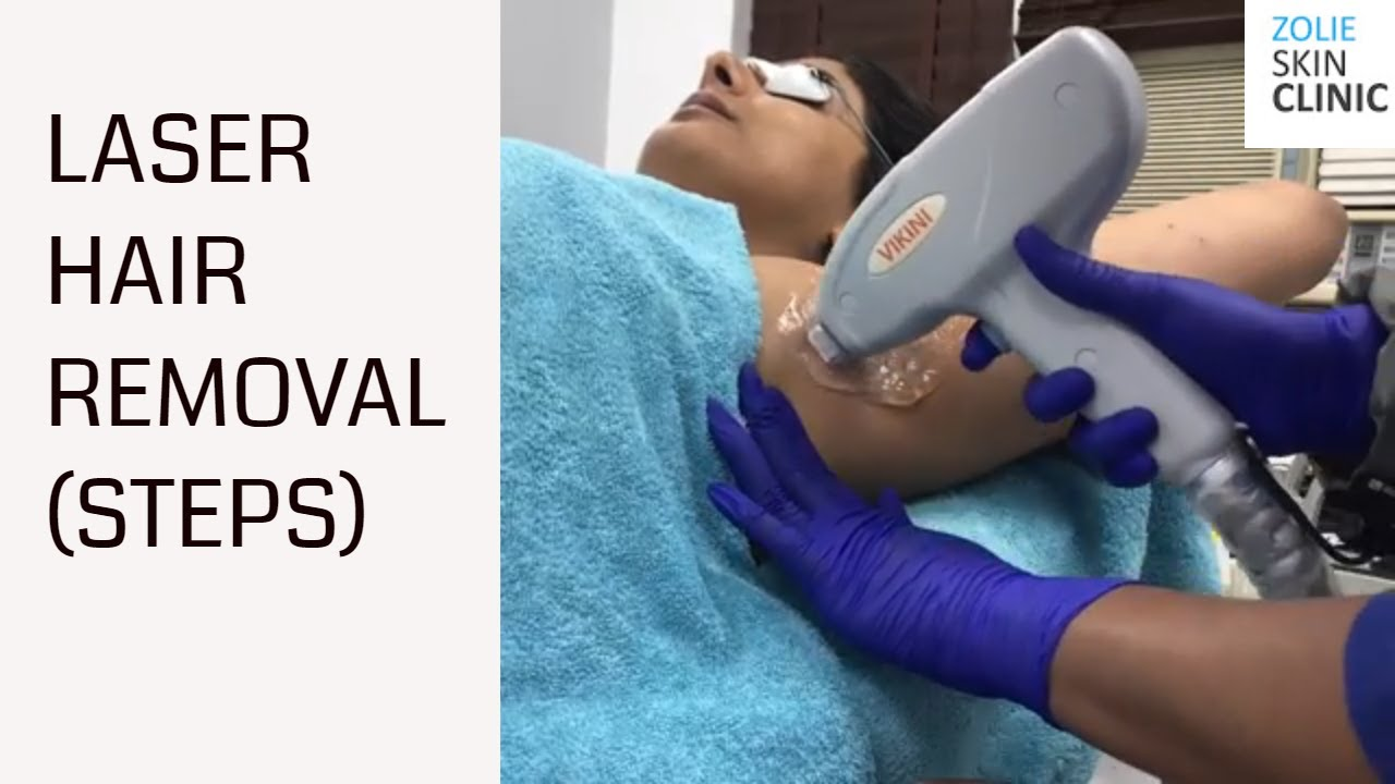 Underarm Hair Removal Laser Treatment(Fast)   Laser Hair Removal in Delhi and Gurgaon