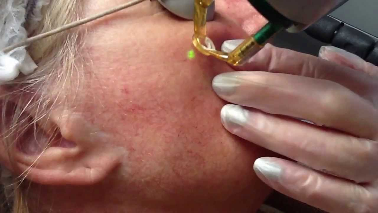 Laser treatment for facial thread veins with Candela Nd:Yag laser