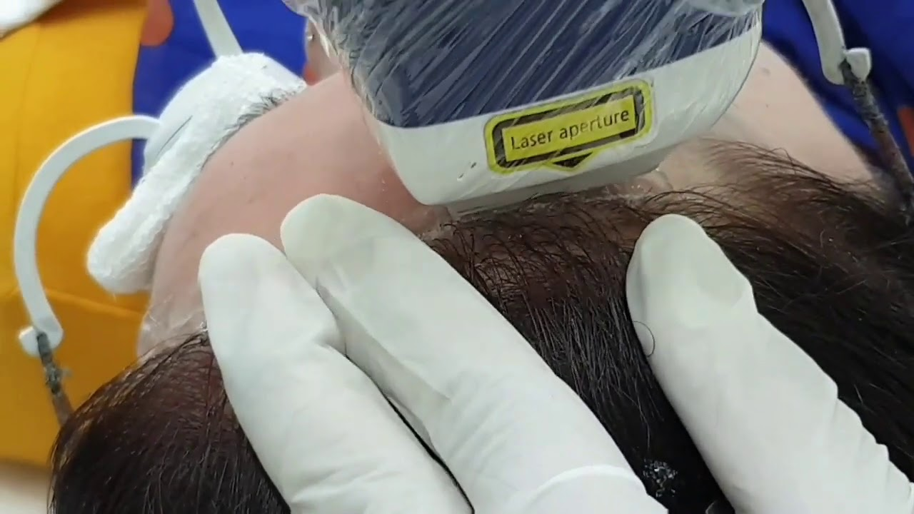 Forehead Hair Removal and Hairline Correction With laser