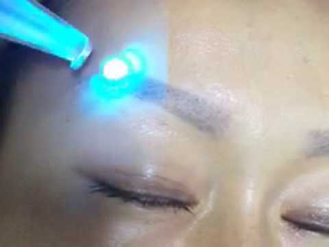 yag laser tattoo removal machine removing eyebrow