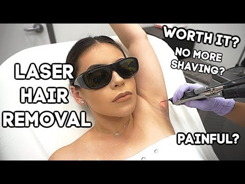GETTING LASER HAIR REMOVAL: UNDERARMS + BRAZILIAN! MY EXPERIENCE | JuicyJas