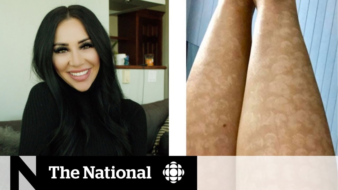 Laser hair removal leaves woman with intense scarring