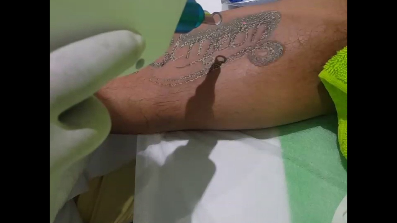 first treatment of our nd yag laser tattoo removal machine