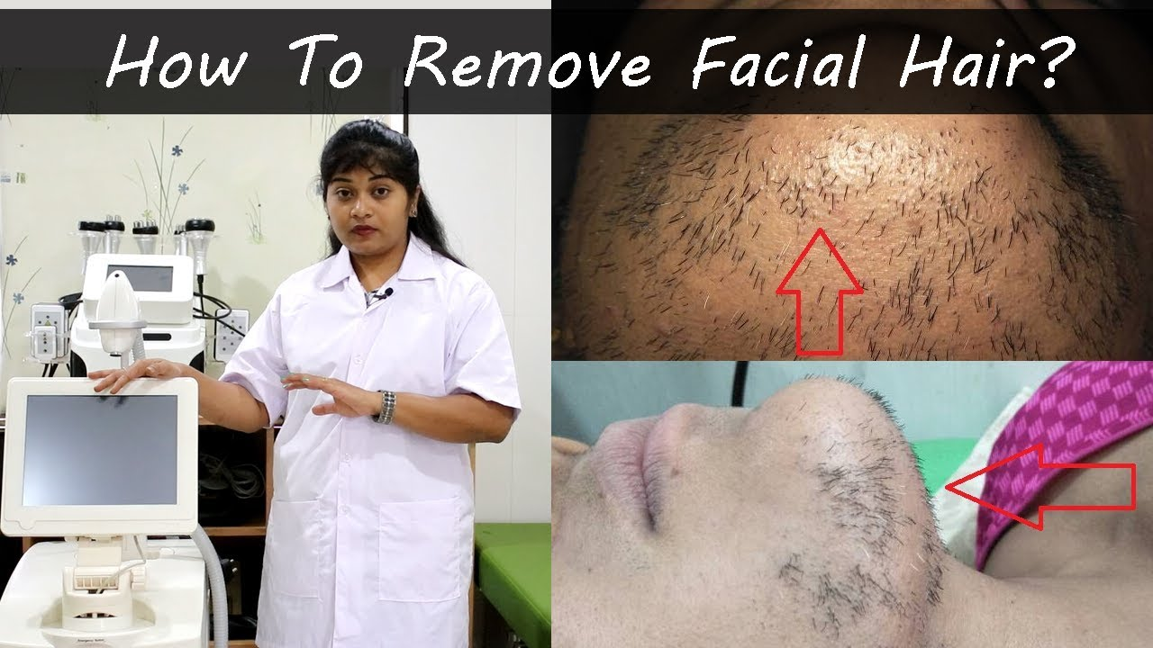 How to Remove Facial Hair – Laser Hair Removal Face Treatment