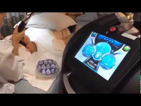 Nd yag Laser Picosecond Tattoo Removal Machine