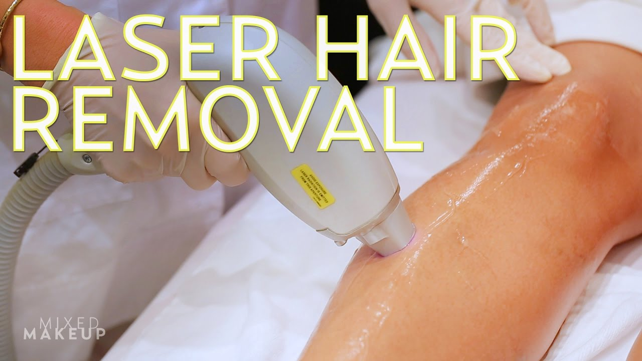 Laser Hair Removal for All Skin Tones | The SASS with Susan and Sharzad