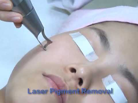 picosecond nd yag laser q switched tattoo removal machine