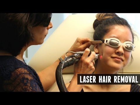 Laser Hair Removal Experience + Q&A!