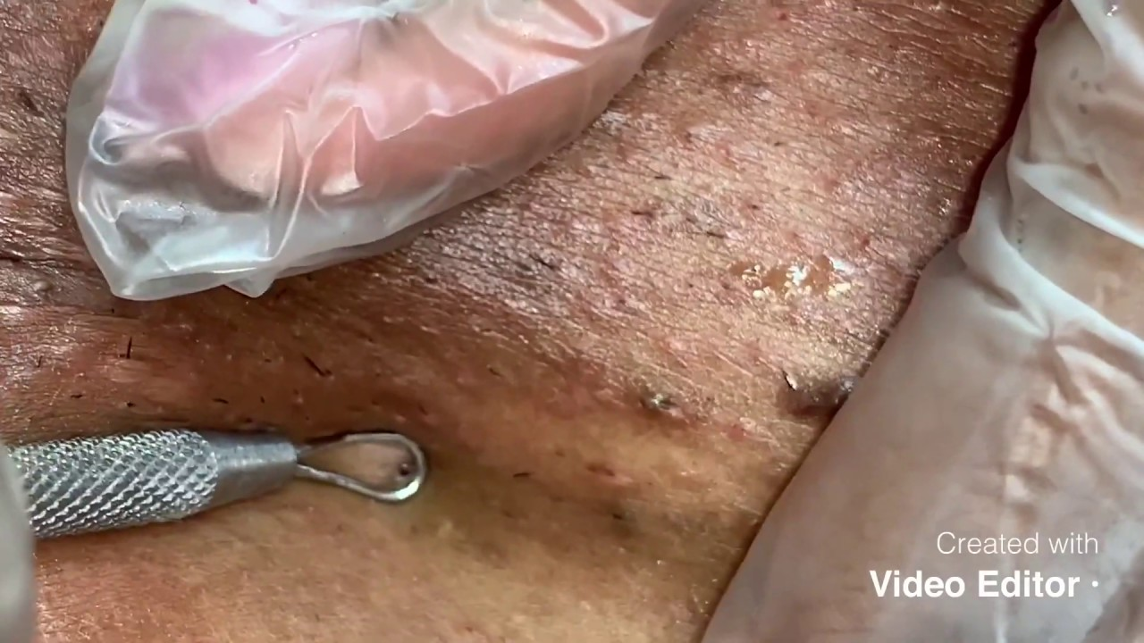 Extractions ( black head / ingrown hair removal )