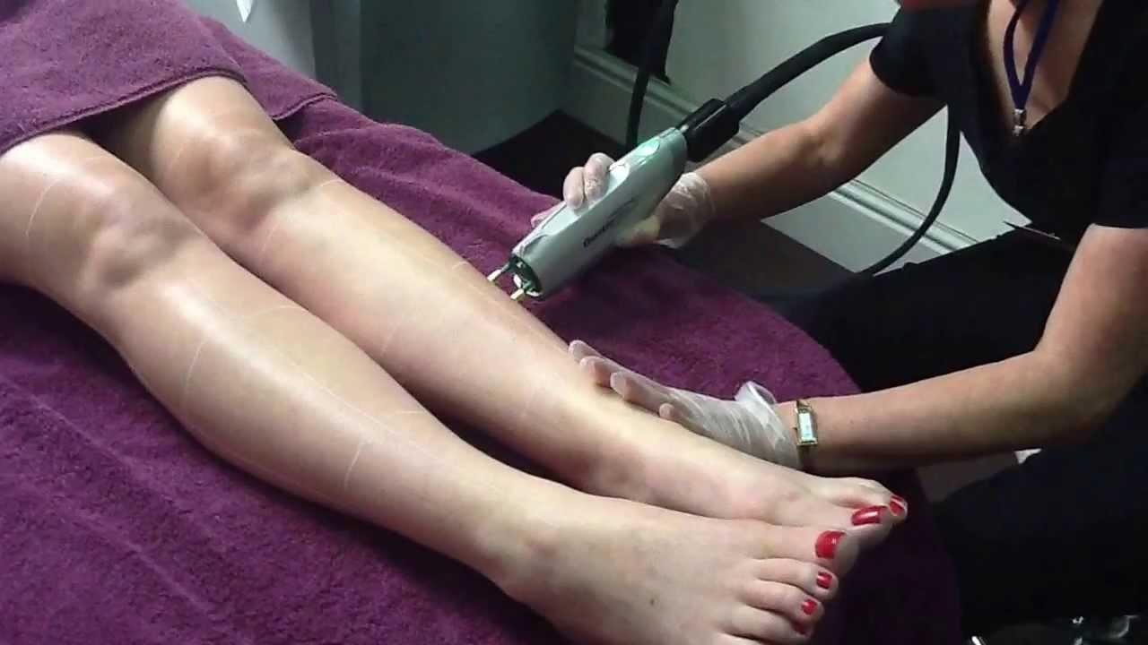 Laser Hair removal with Candela GentleMax Alexandrite Laser