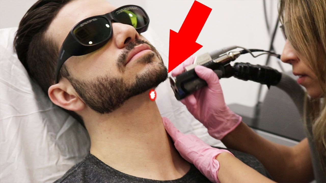 LASER HAIR REMOVAL FOR MEN | DOES IT HURT? ALEX COSTA