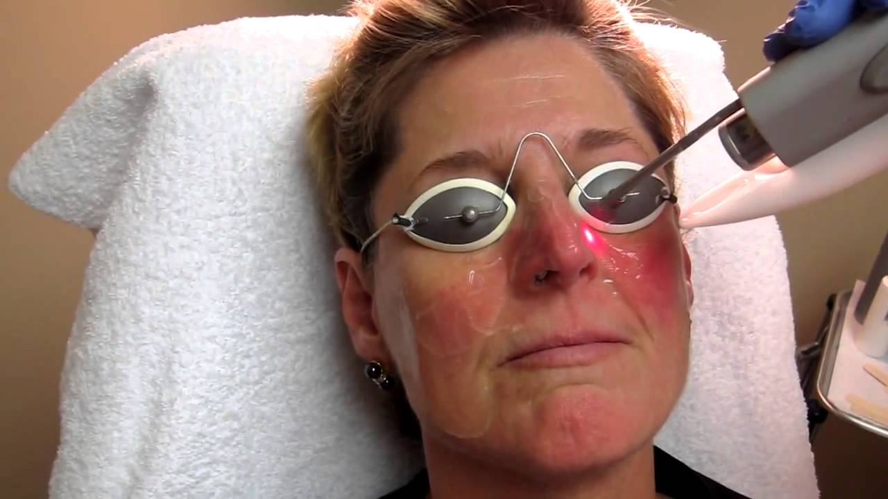 Nd YAG Laser Treatment for Rosacea at Total Body Care