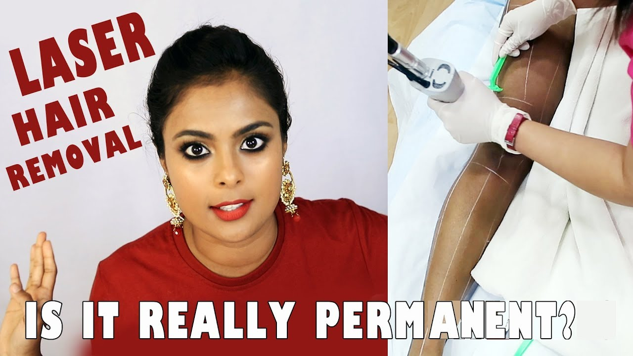 THINGS NOONE TELLS YOU ABOUT LASER HAIR REMOVAL – ON BROWN SKIN