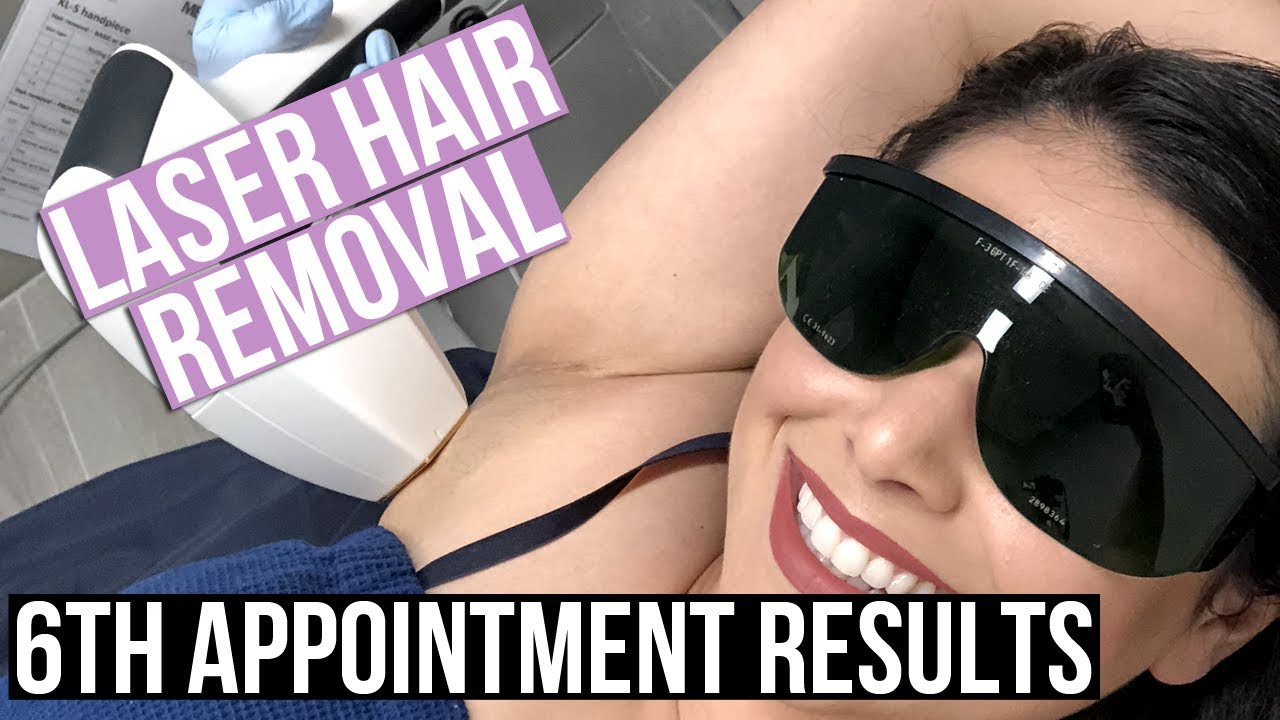 FINAL LASER HAIR REMOVAL RESULTS AFTER 6TH TREATMENT (Underarms & Bikini Line)