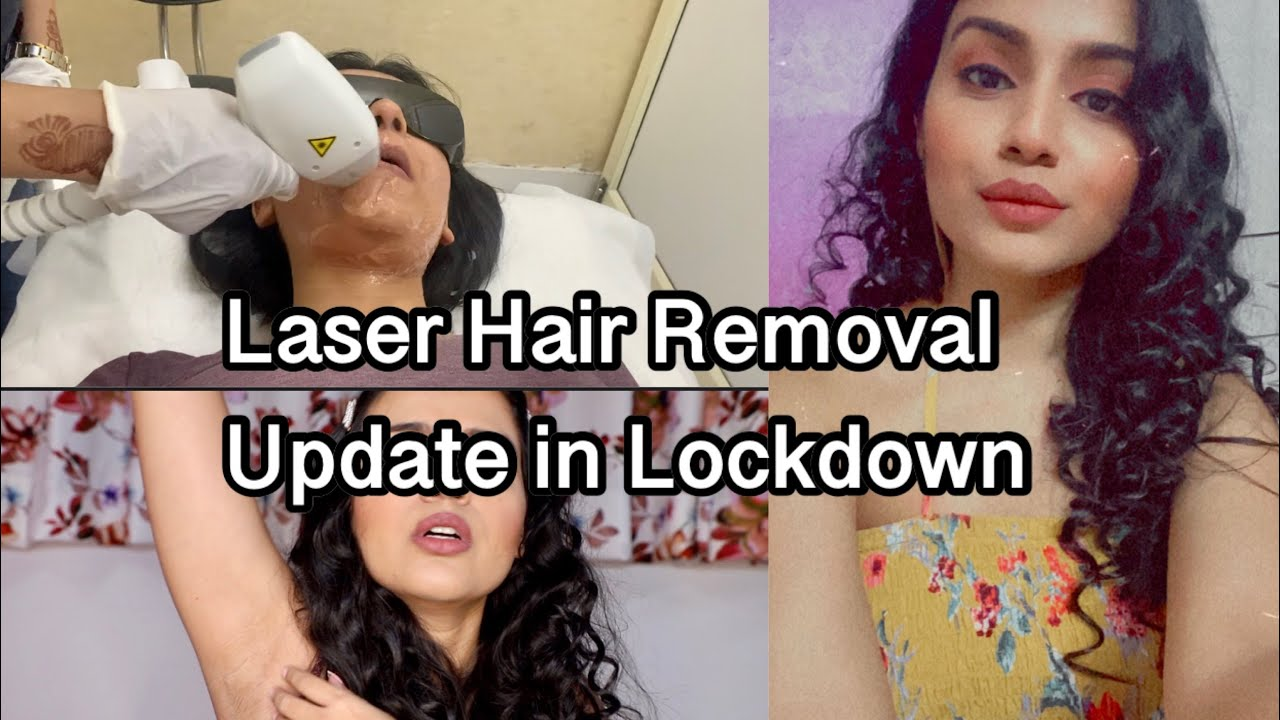 LASER HAIR REMOVAL UPDATE AFTER 6 MONTHS | Hair Removal in Lockdown |Laser Hair Removal Works or Not