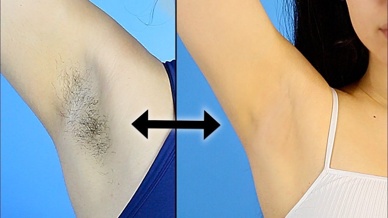 My ARMPIT ROUTINE | Hair Removal & Preventing Dark Underarms