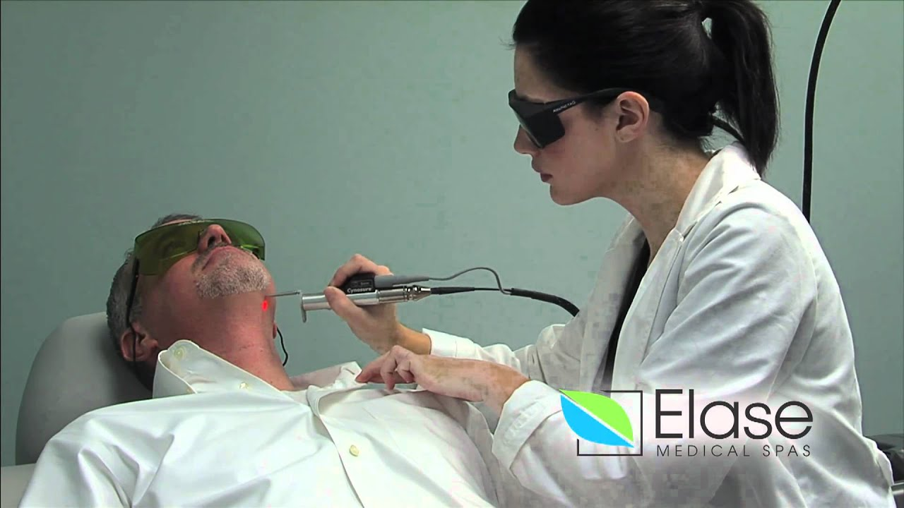 ND:YAG Skin Tightening – Elase Medical Spas
