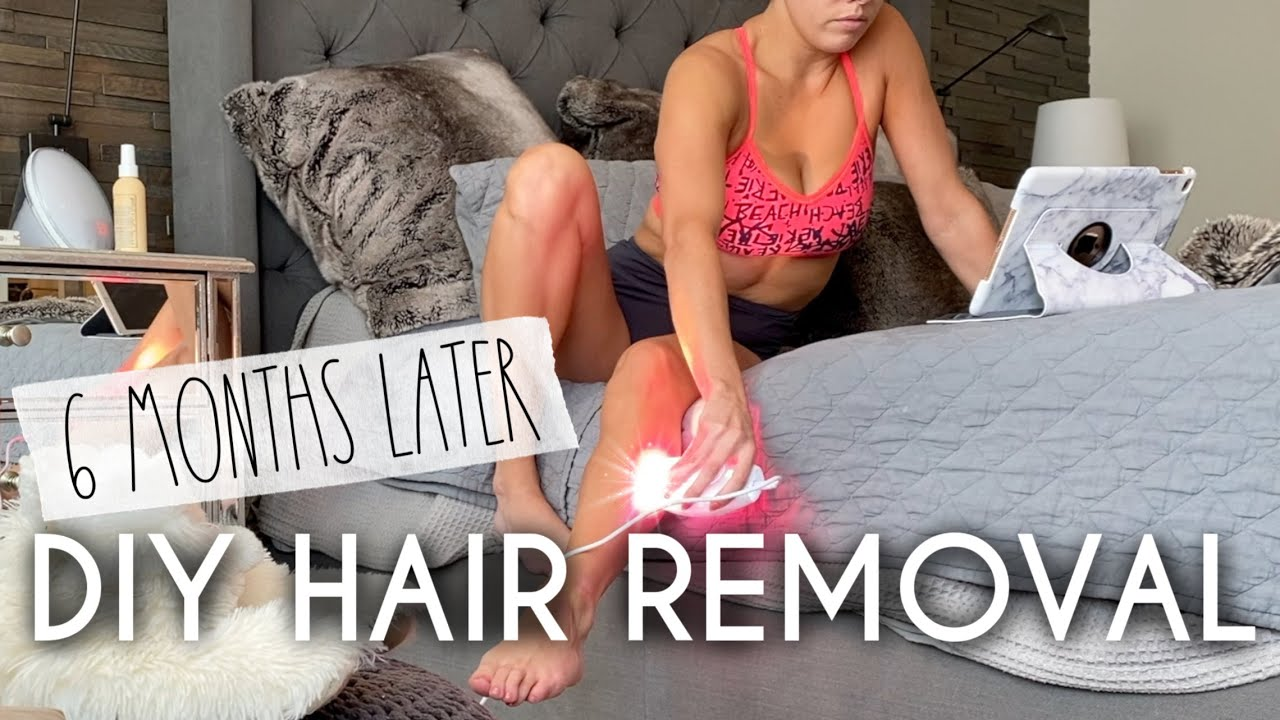 IPL Hair Removal at home | 6 Months Later