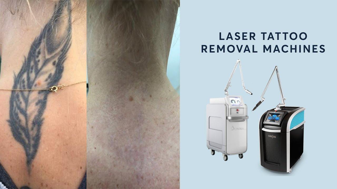 Learn more about our Laser Tattoo Removal machines