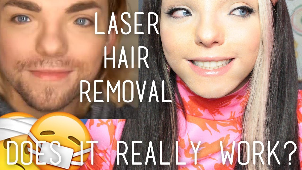 My Laser Hair Removal Journey (with footage!) | Stef Sanjati