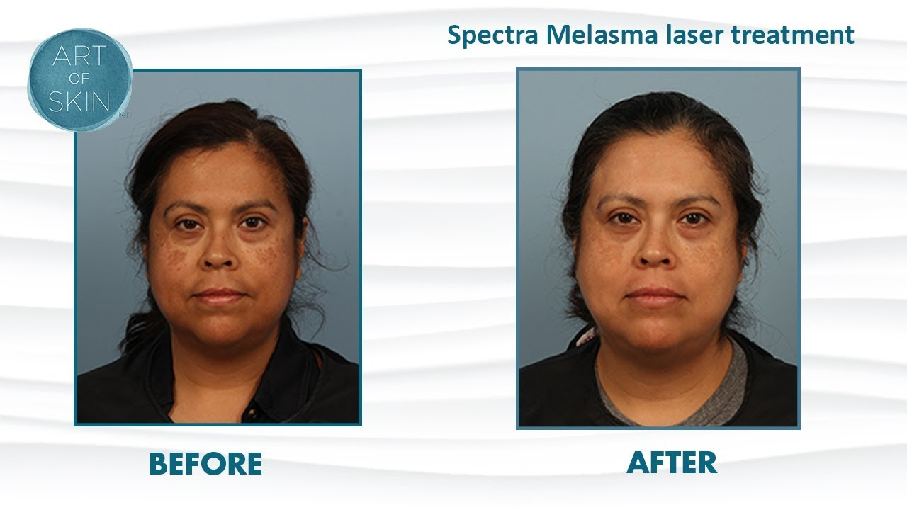 Melasma laser toning with Nd:YAG Spectra Laser for brown patches