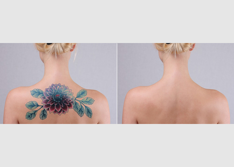 How does laser tattoo removal work.