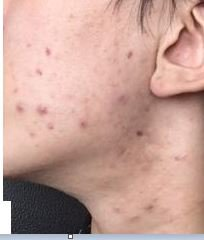 [Skin Concerns] Been trying a new routine for 4 weeks now, need some advice