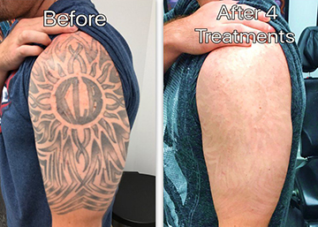 What needs to prepare and precautions before and after the tattoo.