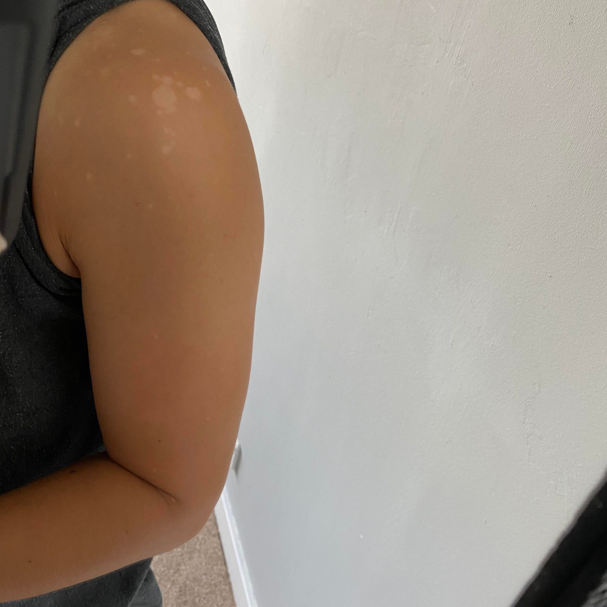 [skin concern] are these white marks caused by the sun? They are mainly on my shoulders and upper back. How to get rid of them?