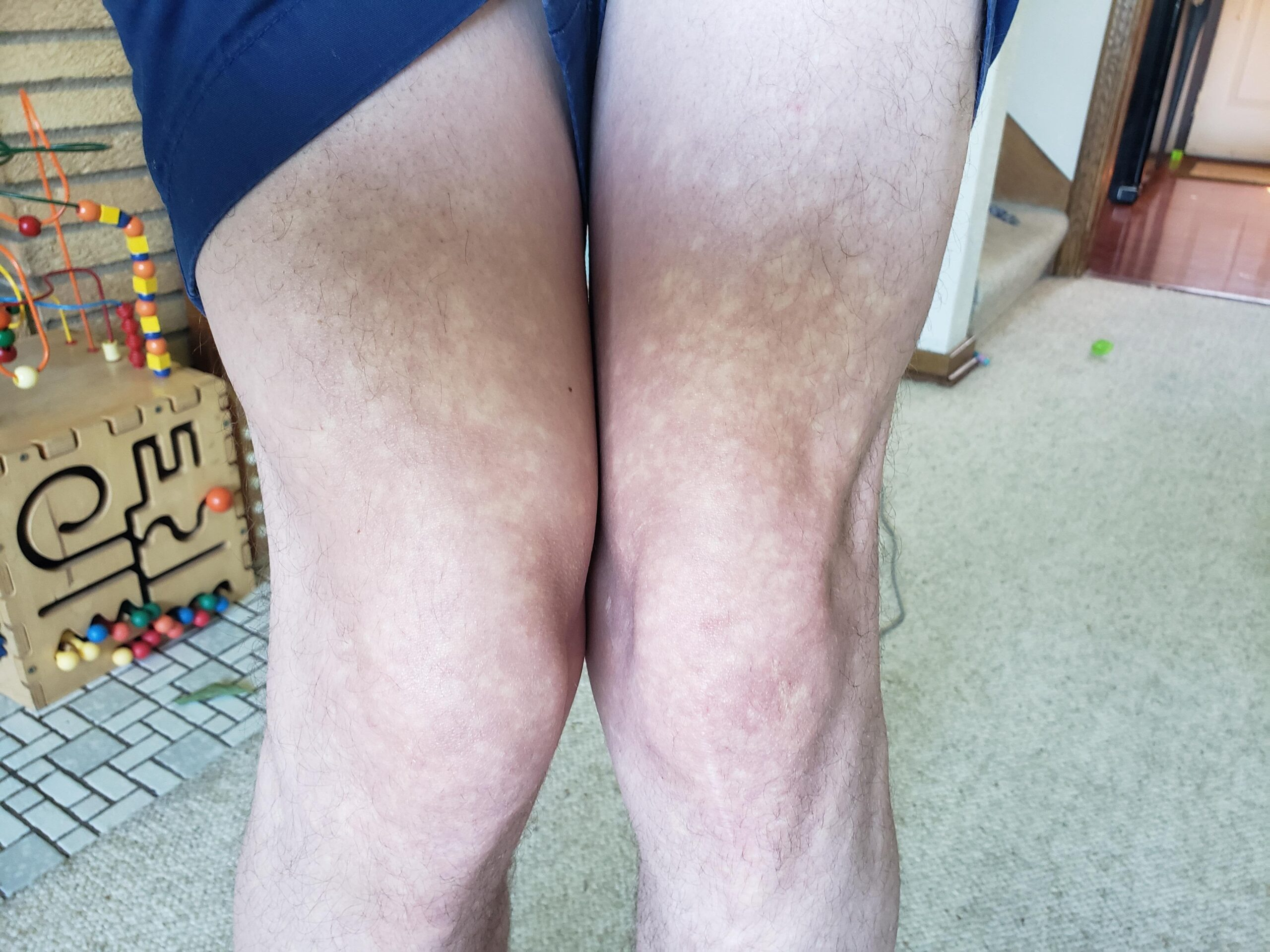 [MISC]I have been getting white blotches around my knees and arms.